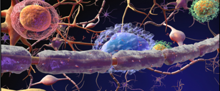 Damaged Myelin In MS (Multiple Sclerosis) Patients