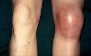 Rheumatoid Arthritis - Knee